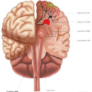пластичность головного мозга